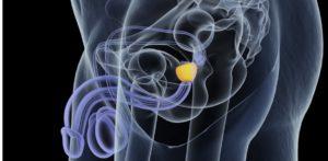 durchsichtige Zeichnung der Lage der Prostata
