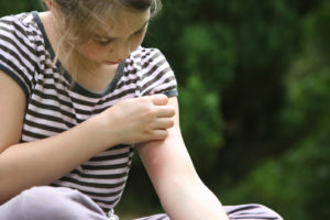 Mädchen mit Mückenstich auf dem Oberarm