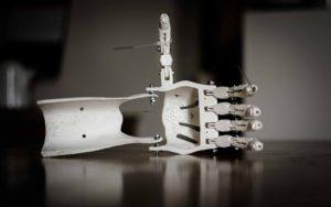eine Handprothese aus gedruckten Elementen