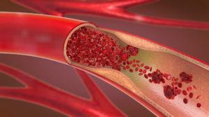 verkalkte Arterie im Anschnitt