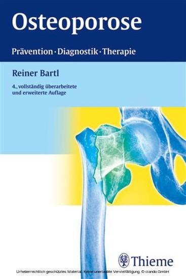 Osteoporose - Blick ins Buch