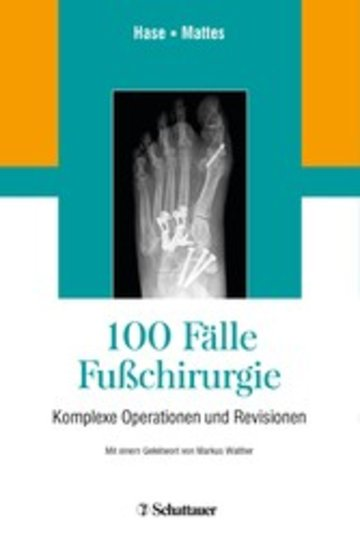 eBook 100 Fälle Fußchirurgie Cover