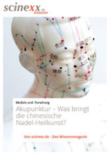 eBook Akupunktur Cover