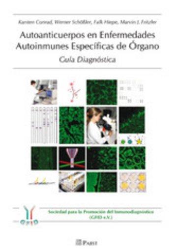 eBook Autoanticuerpos en Enfermedades Autoinmunes Específicas de Órgano – Guía Diagnóstica Cover