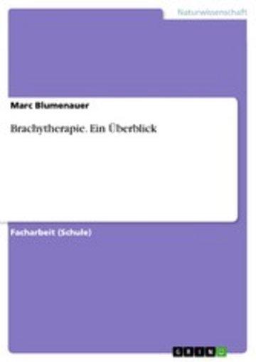 eBook Brachytherapie. Ein Überblick Cover