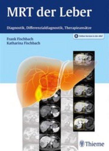 eBook MRT der Leber Cover