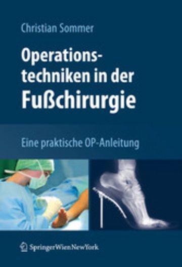 eBook Operationstechniken in der Fußchirurgie Cover